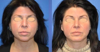 Rhinoplasty, Genioplasty (chin impant), submental liposuction after 1196080
