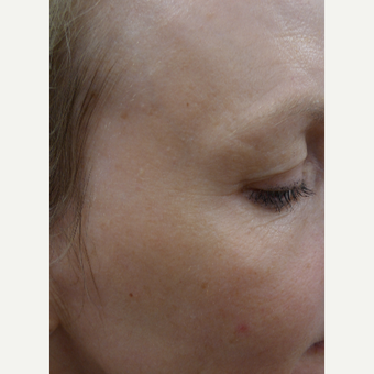 Laser surgery can treat wrinkle and pigmentation secondary to Brisbane's high UV index