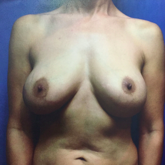 35-44 year old woman treated with Breast Augmentation before 3019445