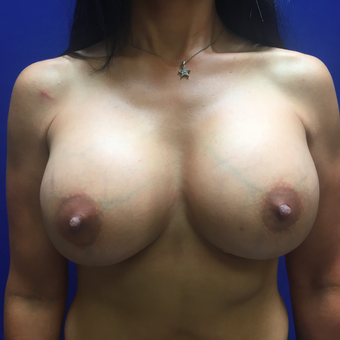 35-44 year old woman treated with Breast Augmentation after 3019445