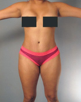 Liposuction and Tummy Tuck - 27 year old female after 1231379