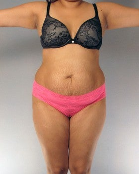 Liposuction and Tummy Tuck - 27 year old female before 1231379