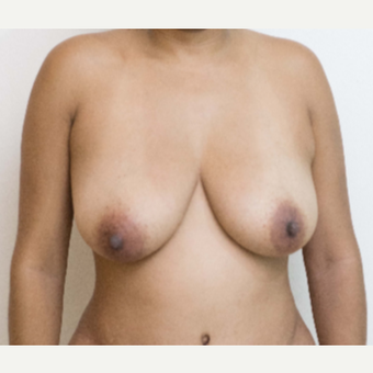 25-34 year old woman treated with Breast Lift before 3768179