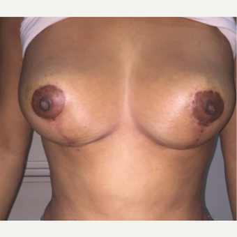 25-34 year old woman treated with Breast Lift after 3768179