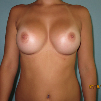 25-34 year old woman treated with Breast Augmentation after 3392296
