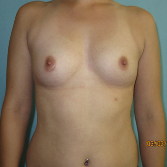 25-34 year old woman treated with Breast Augmentation before 3392296