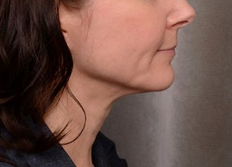 ThermiTight Treatment of Jowl and Neck after 1367469