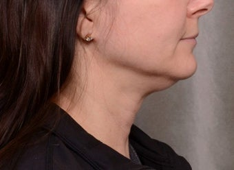 ThermiTight Treatment of Jowl and Neck before 1367469