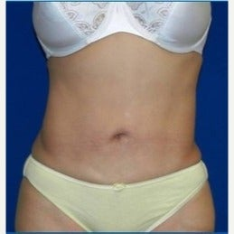 45-54 year old woman treated with Laser Liposuction after 2210635