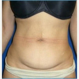 45-54 year old woman treated with Laser Liposuction before 2210635