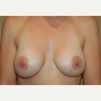 25-34 year old woman treated with Breast Implants after 3752547