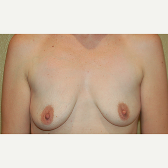 25-34 year old woman treated with Breast Implants before 3752547