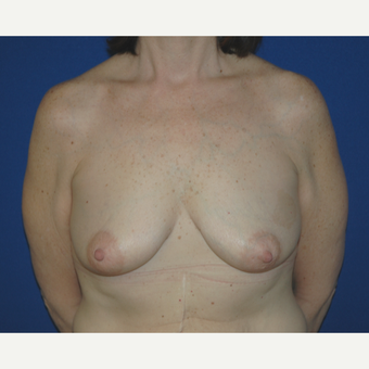 55-64 year old woman treated with Breast Lift with Implants before 3181970