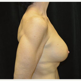 55-64 year old woman treated with Breast Lift with Implants after 3181970