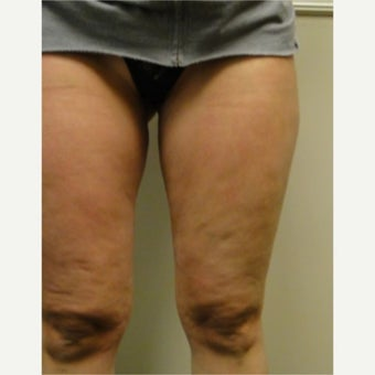 25-34 year old woman treated with Cellulaze before 1579737
