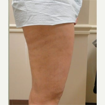 25-34 year old woman treated with Cellulaze 1579737