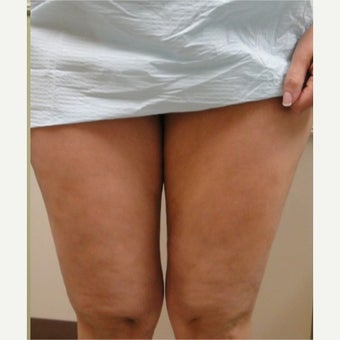 25-34 year old woman treated with Cellulaze after 1579737