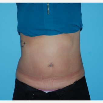 25-34 year old woman treated with SculpSure after 3065497