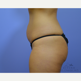 25-34 year old woman treated with Tummy Tuck before 3422051