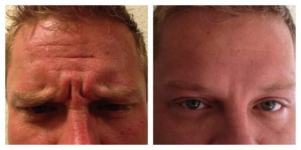 Young Male Treated for Forehead and Glabellar Wrinkles before 1367262