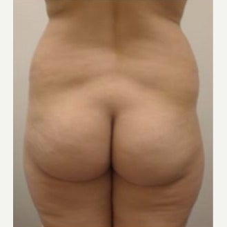 25-34 year old woman treated with Butt Augmentation before 2106727