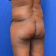 45-54 year old woman treated with Brazilian Butt Lift