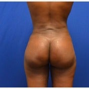 45-54 year old woman treated with Brazilian Butt Lift 1854562
