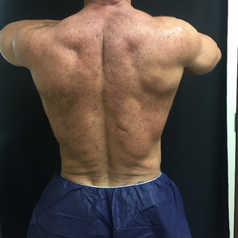 55-64 year old man treated with CoolSculpting after 3008964