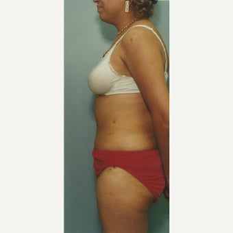 55 year old woman treated with Liposuction of her Abdomen after 1663355