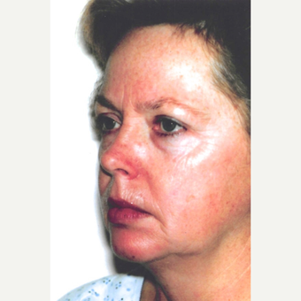 55-64 year old woman treated with Facelift before 3099813
