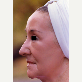 65-74 year old woman treated with Chemical Peel after 3543567