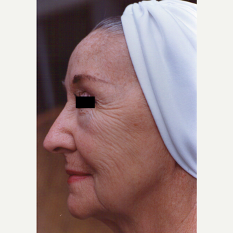 65-74 year old woman treated with Chemical Peel before 3543567