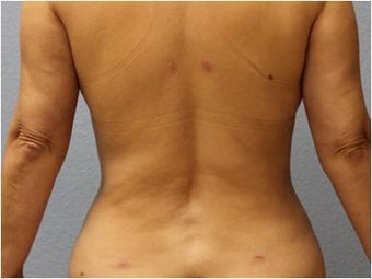 45-54 year old woman treated with Liposuction 3726463