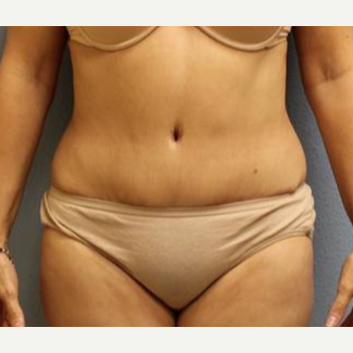 45-54 year old woman treated with Liposuction before 3726463