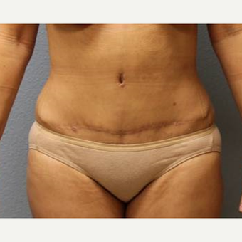 45-54 year old woman treated with Liposuction after 3726463