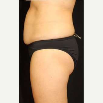 52 year old woman treated with CoolSculpting Non-Surgical Fat Reduction after 3702255