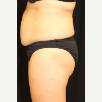 52 year old woman treated with CoolSculpting Non-Surgical Fat Reduction before 3702255