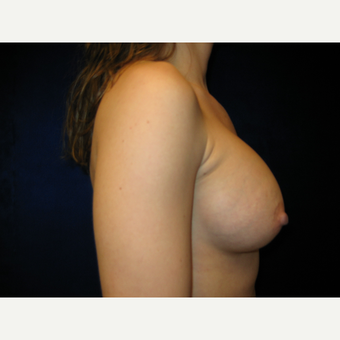 25-34 year old woman treated with Breast Augmentation after 3765841