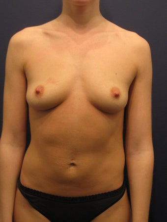 Breast Augmentation with Fat before 904645