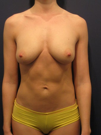 Breast Augmentation with Fat after 904645