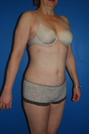 52 year old female liposuction of the abdominal wall and flanks 881457
