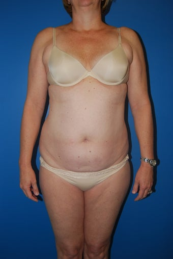 52 year old female liposuction of the abdominal wall and flanks before 881457