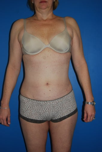 52 year old female liposuction of the abdominal wall and flanks after 881457