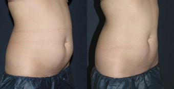 Before & After CoolSculpting before 1027805