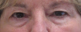 Before and after upper and lower eyelid surgery before 3423159