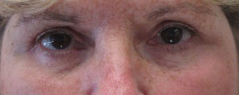 Before and after upper and lower eyelid surgery after 3423159