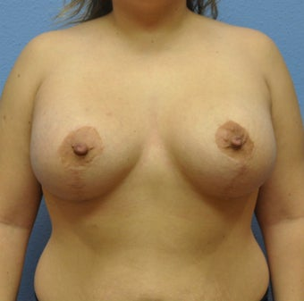 Mastopexy, Breast Lift after 1162076