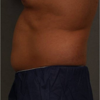 35-44 year old man treated with CoolSculpting of the lower abdomen Newburgh, New York after 1683228