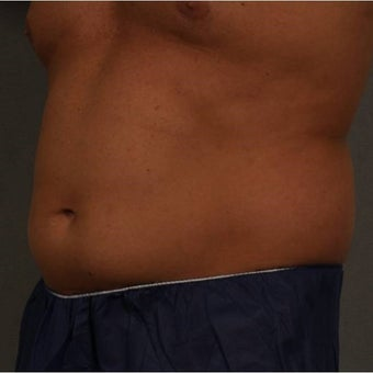 35-44 year old man treated with CoolSculpting of the lower abdomen Newburgh, New York 1683228