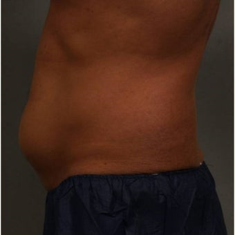 35-44 year old man treated with CoolSculpting of the lower abdomen Newburgh, New York before 1683228